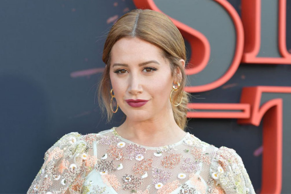 Ashley Tisdale reveals traumatic experience after plastic surgery